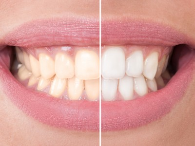 Zahnaufhellung Vorher Nachher