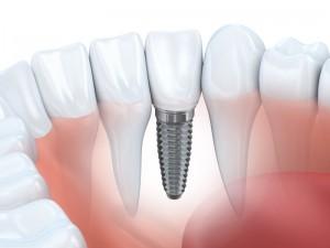 Darstellung Zahnimplantate